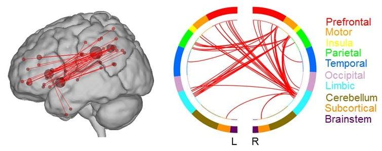 areas del cerebro encargadas del proceso creativo
